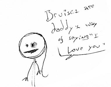 bruises-love
